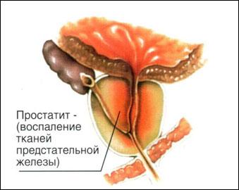 лечение простатита калининград