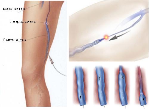 эндовенозная лазерная коагуляция