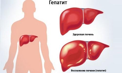Чем лечить спаечный процесс брюшной полости