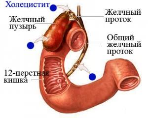 """Лечение хронического холецистита - медцентр """"Надежда"""""""
