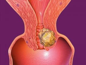 Чем лечить вирус папилломы человека у женщин