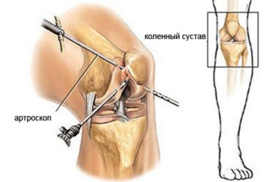 Артоскопическое обследование суставов болят суставы ног опухают