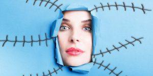 иссечение шрамов на лице