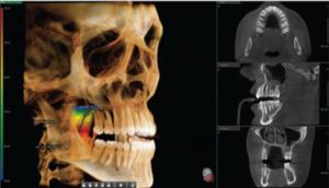 изображение зубов на томографе