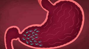 лечение хронического гастрита